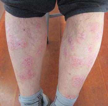 牛皮癣的诱发病因与治疗误区