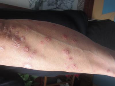 腿部牛皮癣的原因是什么呢