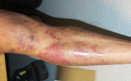 肢端型牛皮癣中医能治疗好吗