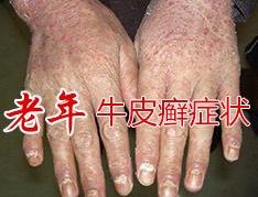 老年银屑病发病有哪些特点呢